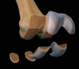 восстановить гибкость сустава после перелома