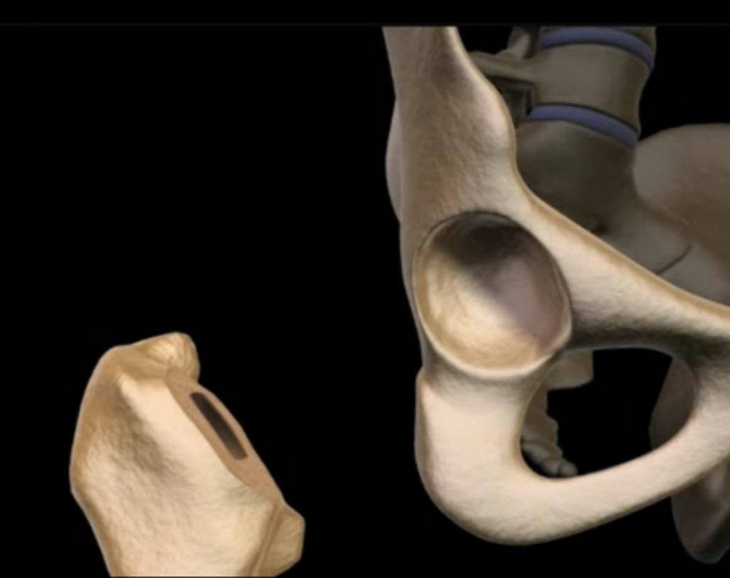 Замена тазобедренного сустава в алматы народная медицина при ревматизме суставов