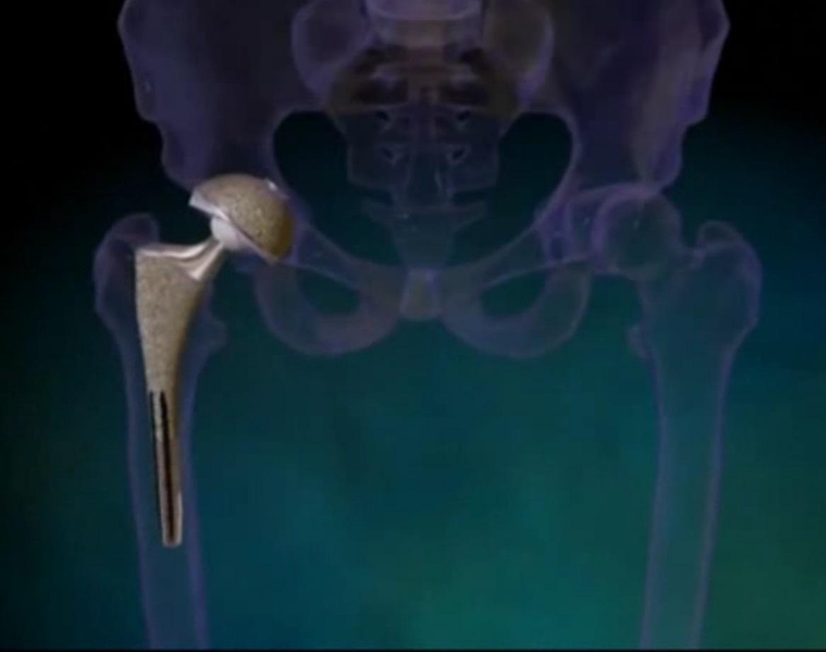 рак тазобедренный сустав