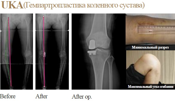Гемиартропластика коленного сустава