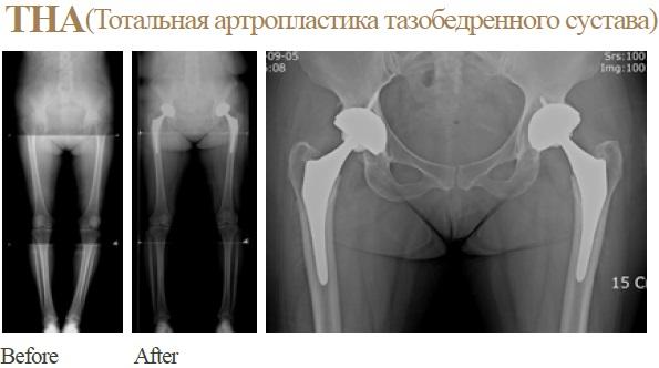 Тотальная артропластика тазобедренного сустава